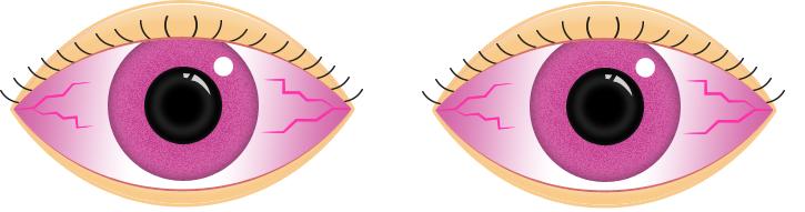 Pink Eyes clipart Care Pink Eye Eye