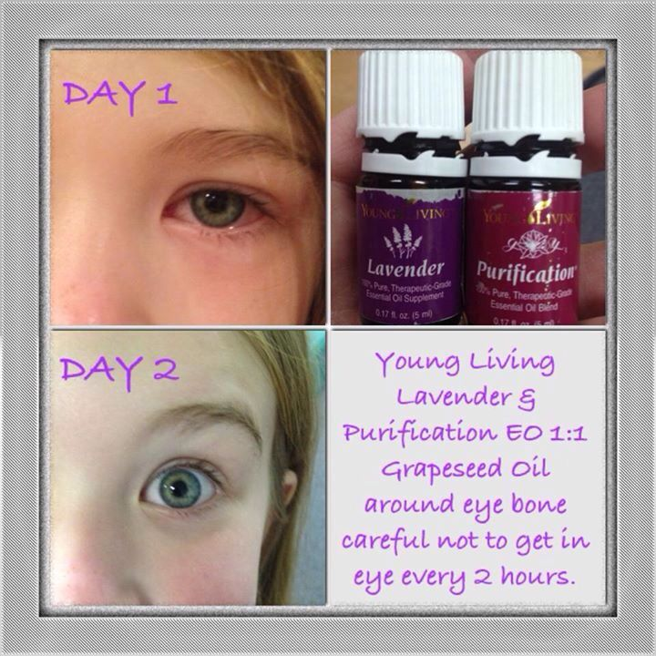 Pink Eyes clipart eye pain Pinterest pink treatment for Young