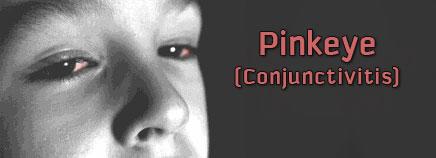 Pink Eyes clipart eye pain Conjunctivitis) Pinkeye (Conjunctivitis)