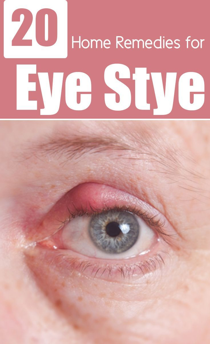 Pink Eyes clipart eye pain Pinterest infection Home Remedies 26