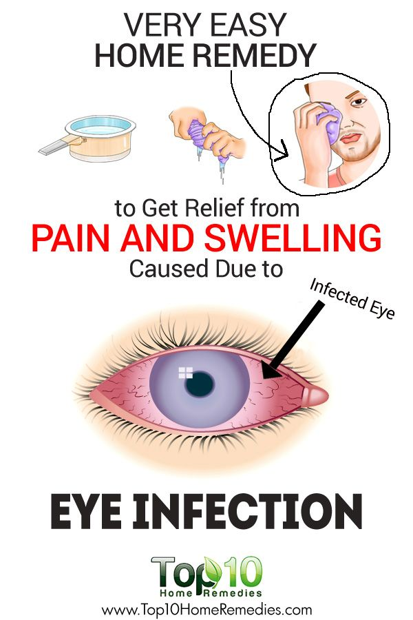 Pink Eyes clipart infected Pinterest Infection Due Pain Easy