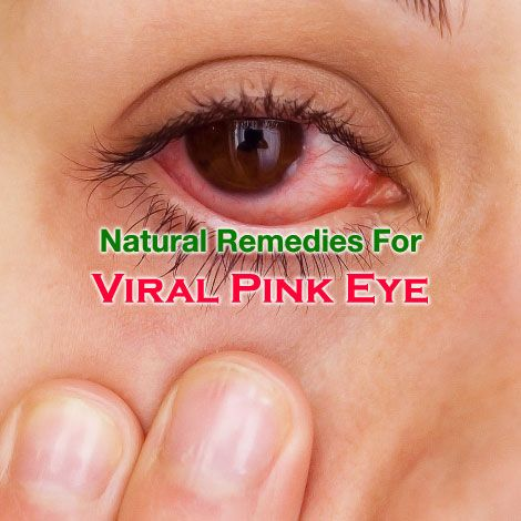 Pink Eyes clipart tired eye Pink eye 25+ Pinterest causes