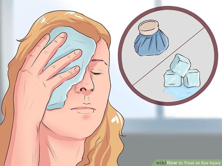 Red Eyes clipart eye injury #7