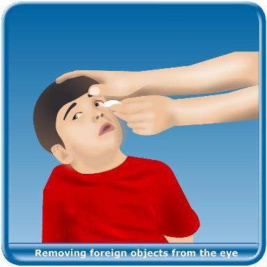 Red Eyes clipart eye injury #5