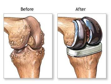 Scar clipart knee replacement Pinterest 25+ Surgery and Best