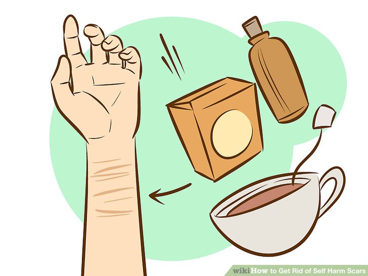 Scar clipart thigh Get of wikiHow Get Scars