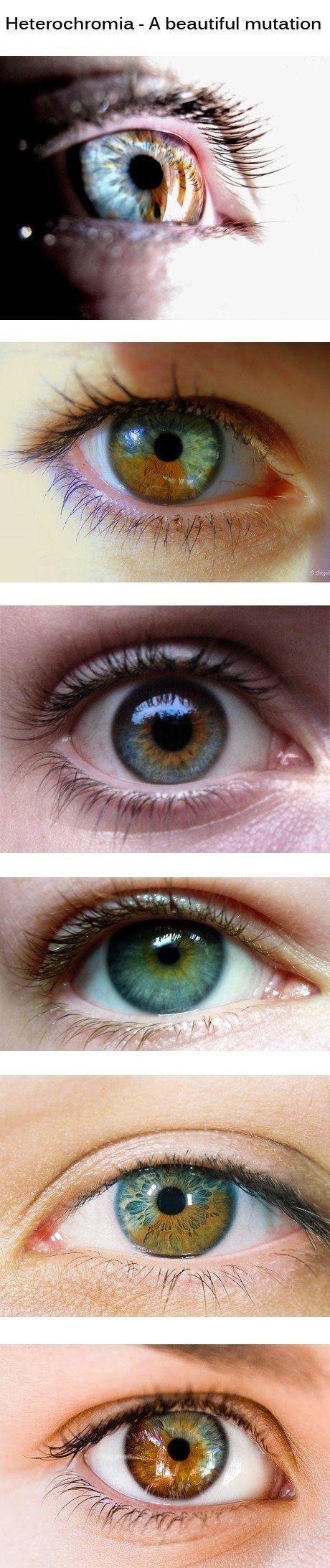 Sensen clipart eye color Eyes on Heterochromia Pinterest of