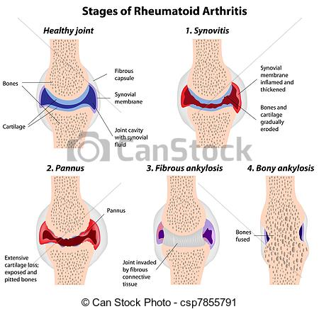Shoulder clipart arthritis Vector of Clip  rheumatoid