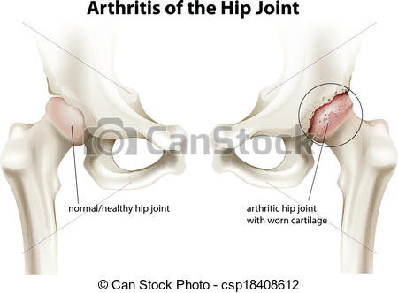 Shoulder clipart arthritis Csp18408612 of Vector Illustration of