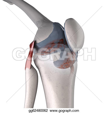Shoulder clipart arthritis Illustration Arthritis gg62480062 Stock Arthritis