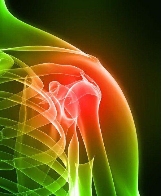 Shoulder clipart sore Pain images Management on Pinterest