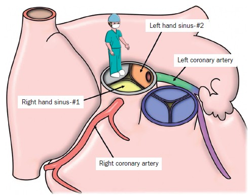 Structure clipart contents Structure structure Coronary circulation Stenosis