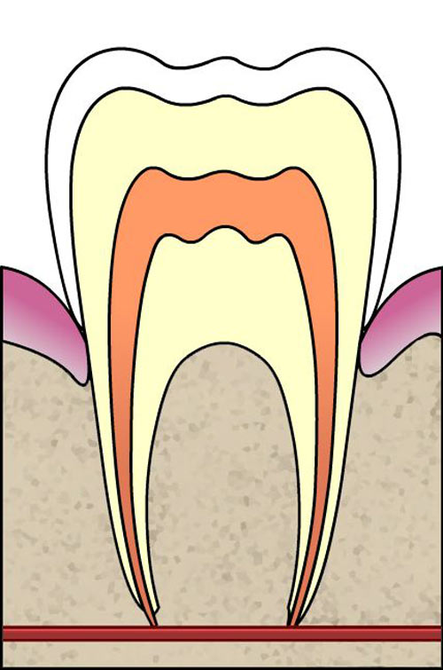 Teeth clipart structure a Causes tooth know teeth? to