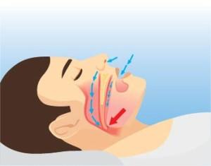 Tired clipart sleep apnea #4