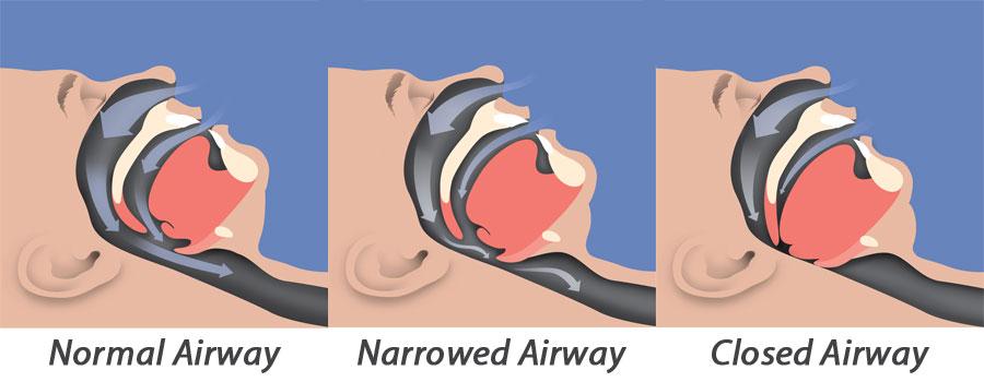 Tired clipart sleep apnea #2