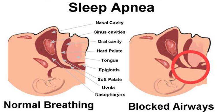 Tired clipart sleep apnea #8