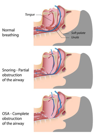 Tired clipart sleep apnea #5