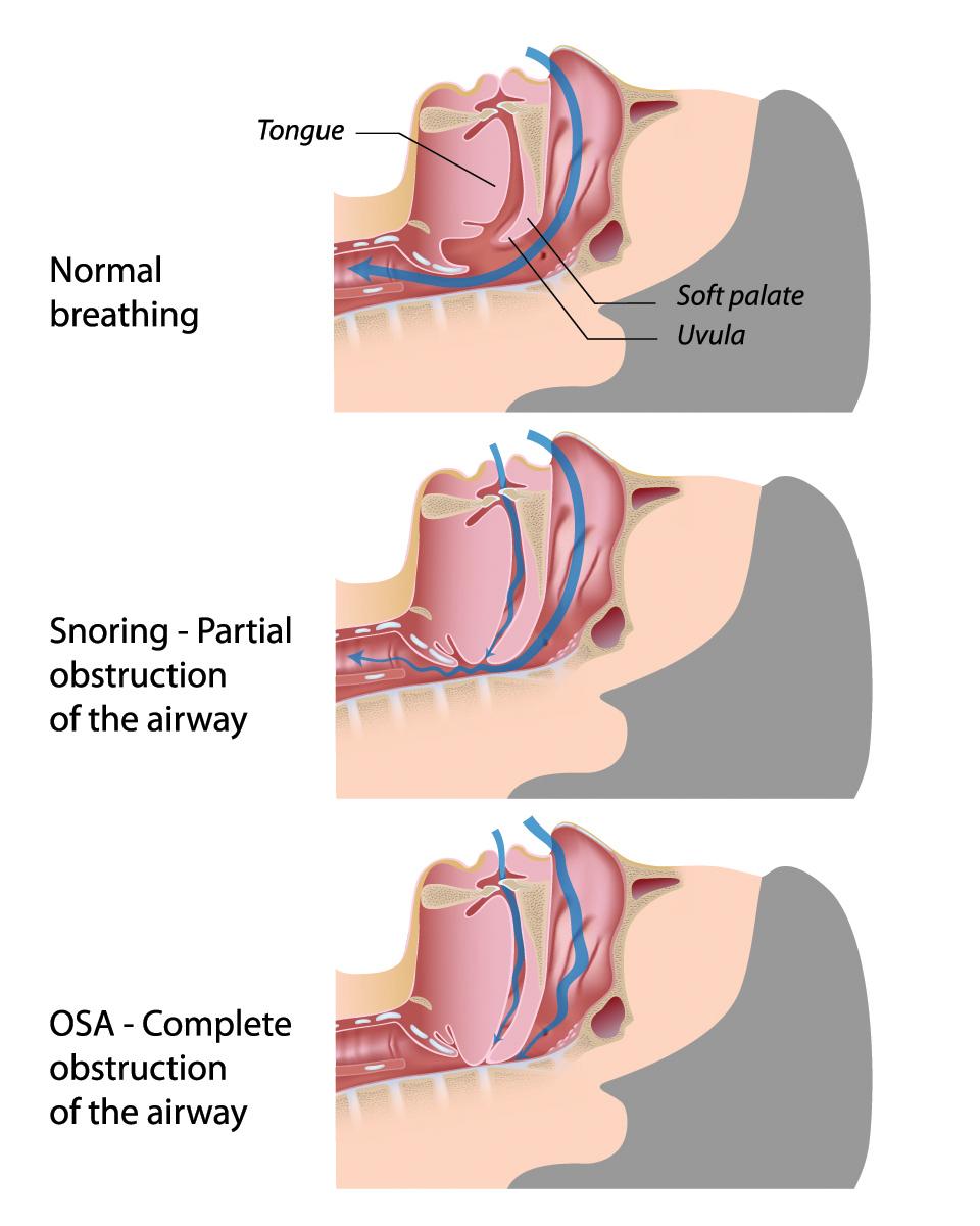 Tired clipart sleep apnea #7