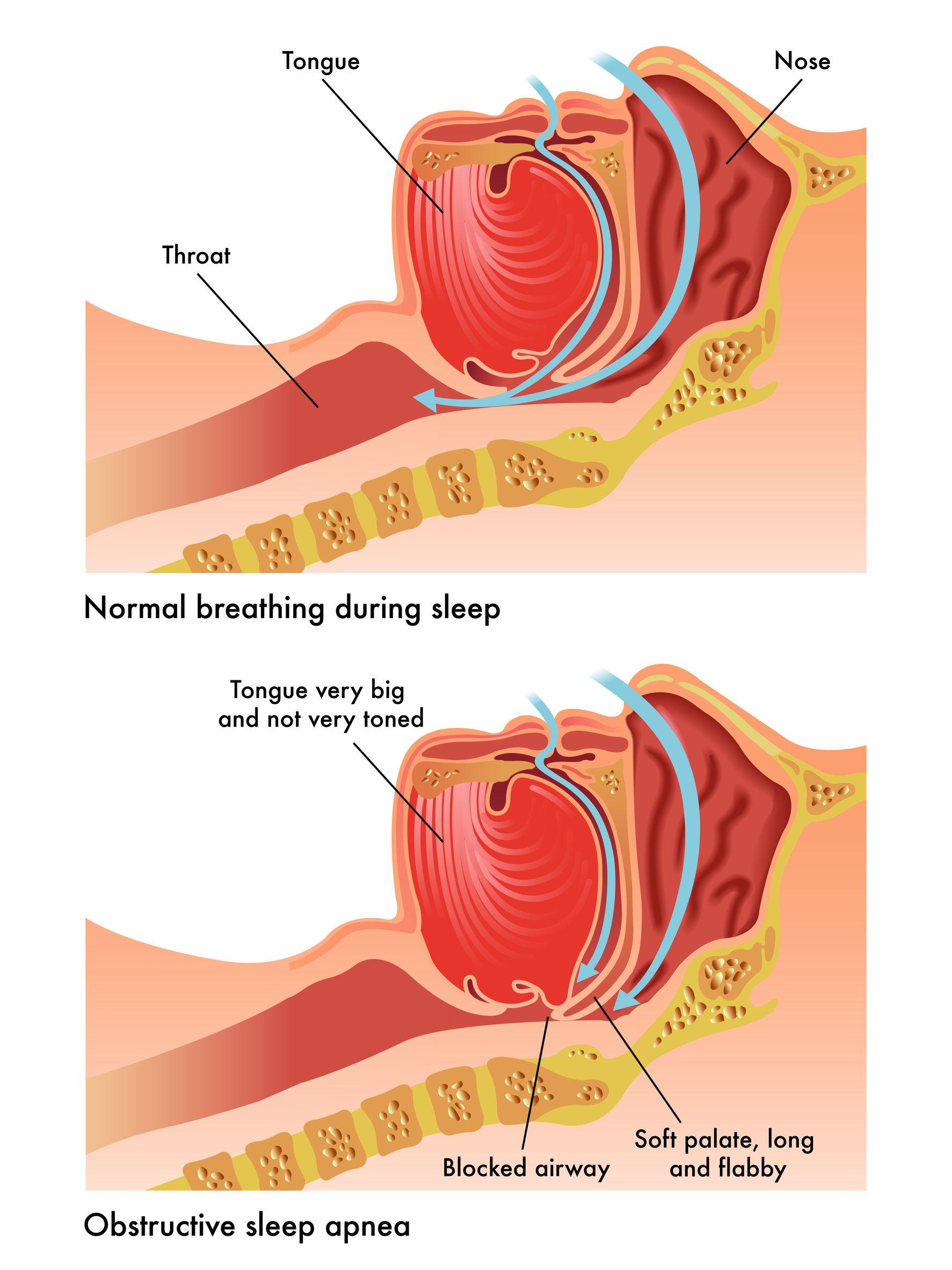 Tired clipart sleep apnea #3