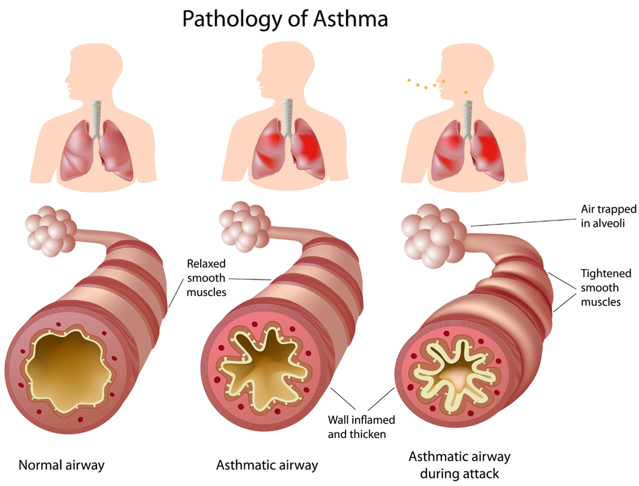 Treatment clipart asthma attack In of Asthma Symptoms of
