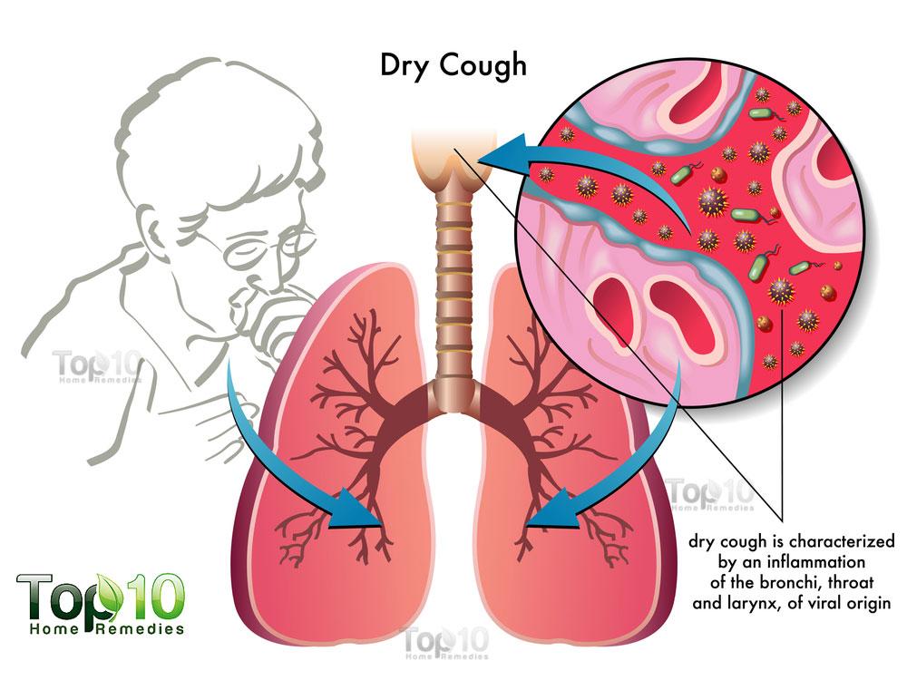 Medicine clipart cold cough Cough diagram Top 10 Remedies