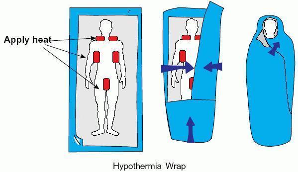 Warmth clipart hypothermia Cold stimulation Community