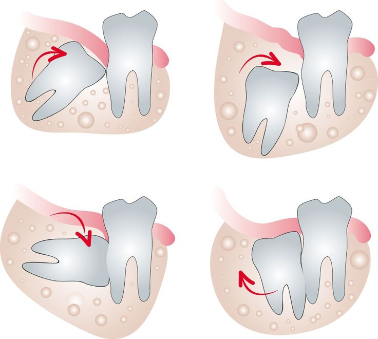 Wisdom clipart face When Tooth With Wisdom teeth