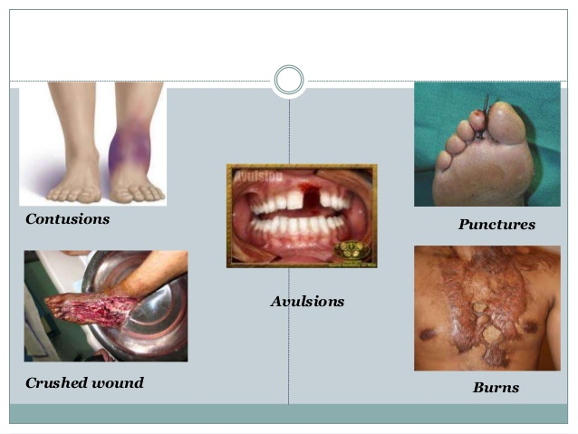 Wound clipart avulsion Punctures wound oral Crushed wounds