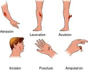 Wound clipart avulsion Of Causes on 295 &