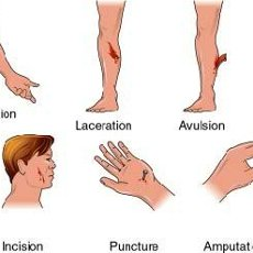 Wound clipart avulsion OPEN × images BLEEDING Related
