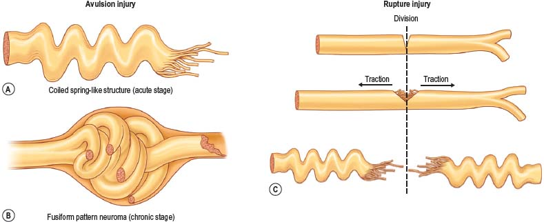Wound clipart avulsion Mechanism The Surgery injury 3