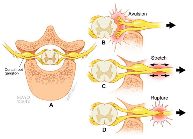 Wound clipart avulsion In of views shown AAOS