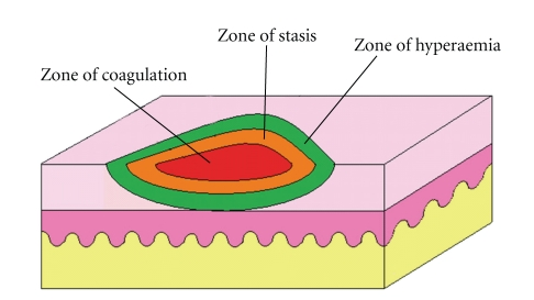 Wound clipart burn injury Of burn injury zones stasis)