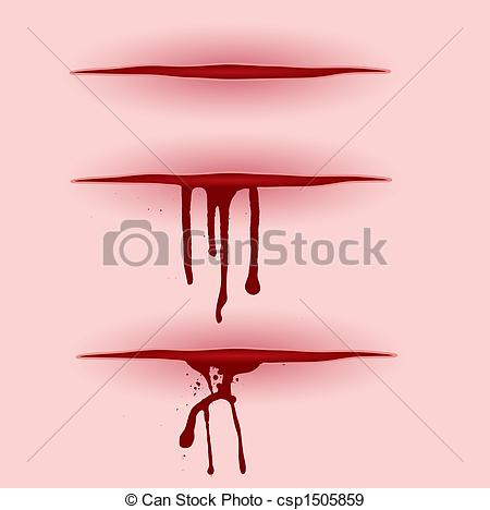 Wound clipart cut wound Pooring Wound with Wound 454