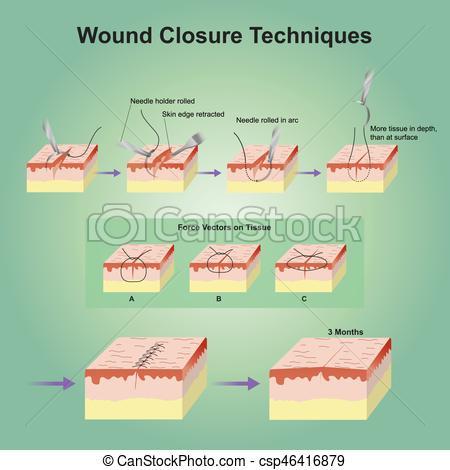 Wound clipart injury  closure which in wound)