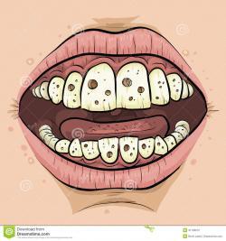 Teeth clipart cavity cartoon