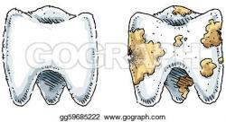 Decay clipart molar tooth