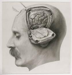 Drawn brains dr frankenstein