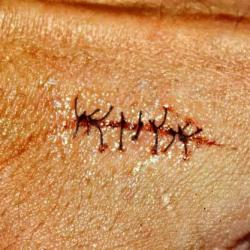Drawn scar cut