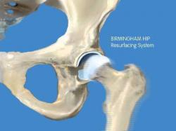 Drawn scar hip resurfacing