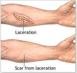 Drawn scar laceration