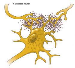 Neuron clipart dead