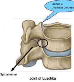 Shoulder clipart arm pain